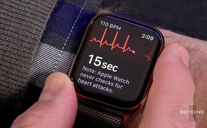 apple watch ekg alma